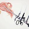祛除子宫肌瘤 宫腹腔镜微创术优选