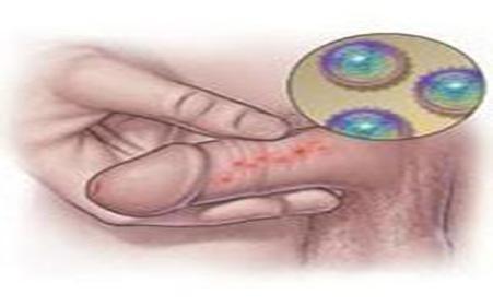 苏州男科医院解释男性包皮出现红疙瘩是什么原因?