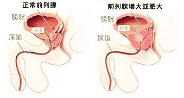 苏州治疗前列腺炎,前列腺对生育的影响?