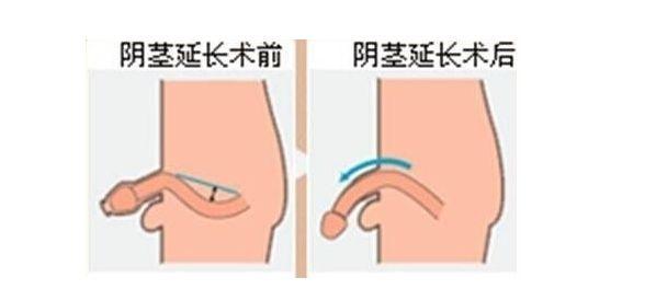 苏州男科医院介绍什么人适合做阴茎延长术?