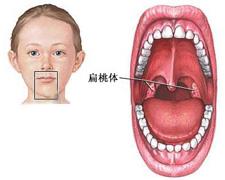 导致急性扁桃体炎的原因是什么_苏州东吴医院