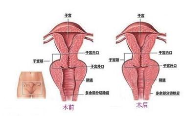 阴道紧缩术注意事项