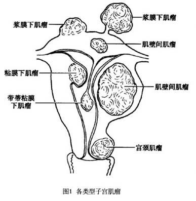 苏州治疗子宫肌瘤较好的方法