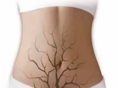 苏州妇科医院的排名,哪些因素易导致宫颈糜烂?