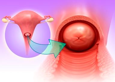 【苏州妇科医院】造成宫颈肥大的原因是什么?
