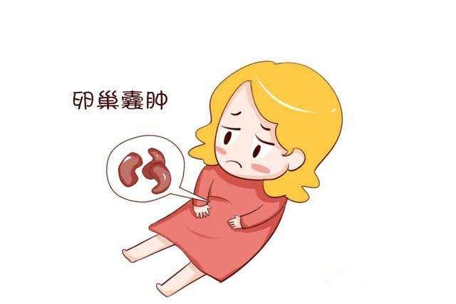 卵巢囊肿不治疗的危害