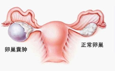 苏州卵巢囊肿的妇科医院_卵巢囊肿必须做手术吗