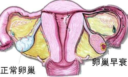 苏州较好的妇科医院_导致卵巢早衰的原因有哪些