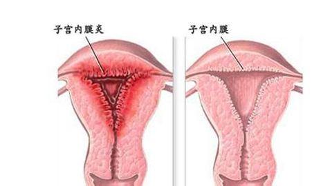 苏州看妇科正规的医院_子宫内膜炎的诱因有哪些