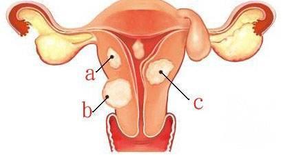 苏州妇科_预防子宫肌瘤要少吃哪些食物