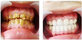 苏州牙齿冷光美白多少钱?
