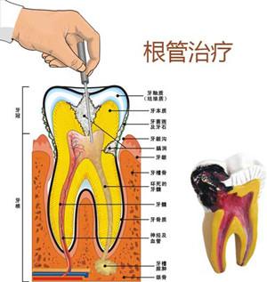 苏州治疗牙疼痛多少钱?
