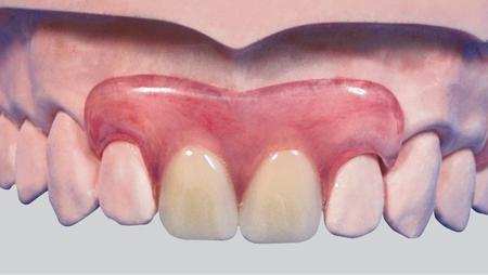 隐形义齿修复的注意事项
