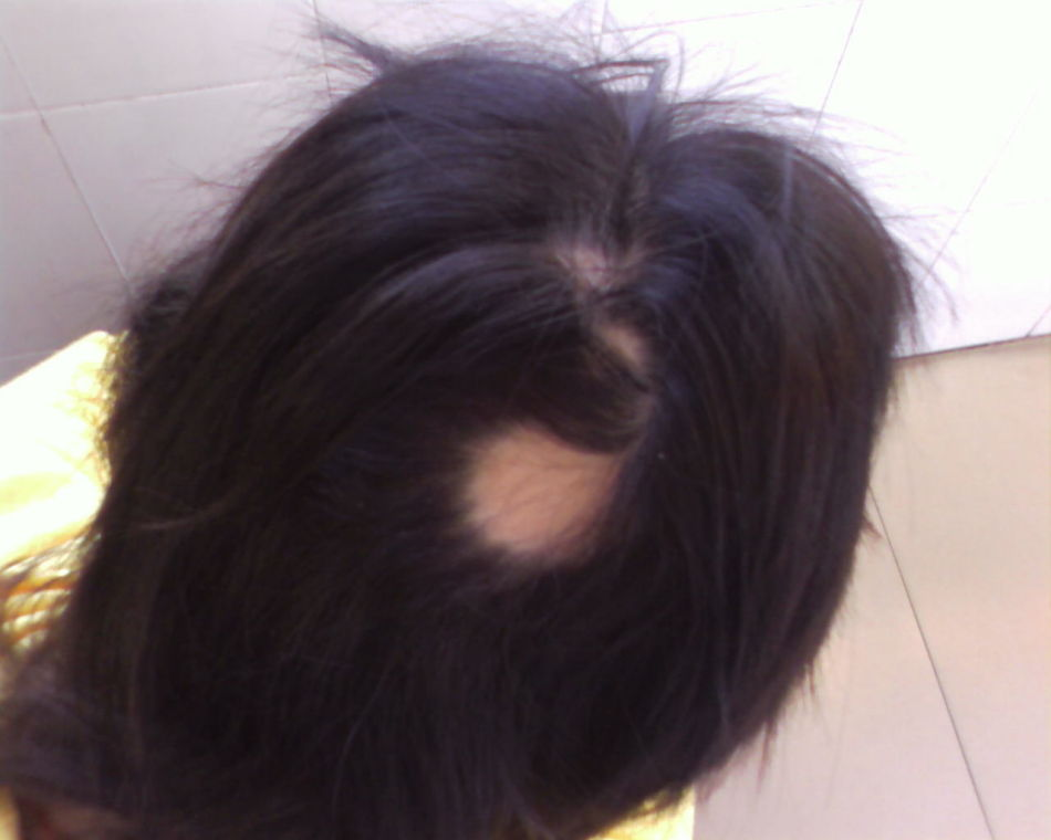 什么是季节性脱发? 苏州东吴医院